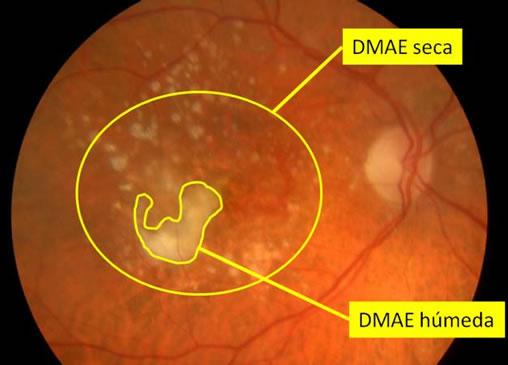 Ejemplo de Degeneracion Macular DMAE Seca y Humeda