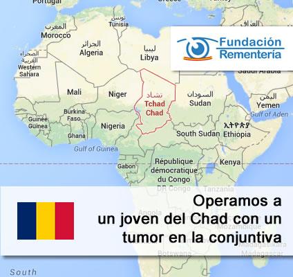 Operación de un joven del Chad con un tumor en la conjuntiva